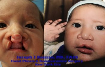 baby before and after cleft lip plastic surgeon new york, ny