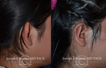 person before and after Ear reconstruction new york, ny