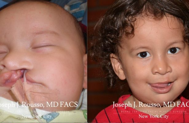 Cleft Lip & Palate before/after photo 2