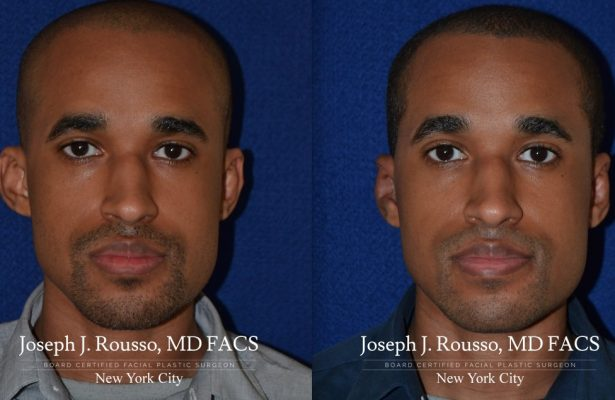 Otoplasty/Ear Pinning before/after photo 4