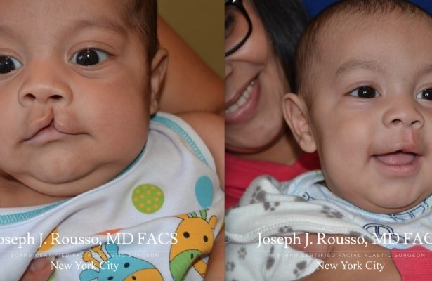 Cleft Lip & Palate before/after photo 3