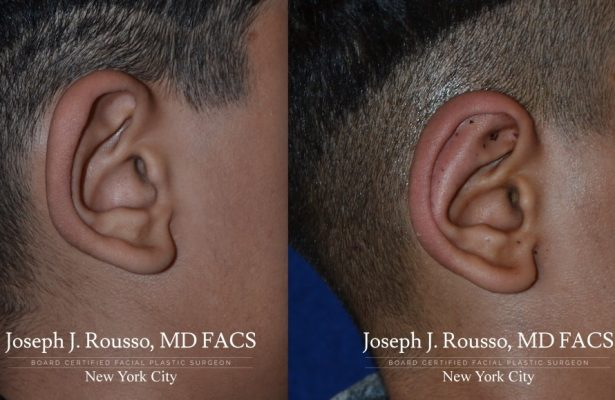 Otoplasty/Ear Pinning before/after photo 5