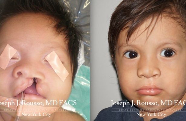 Cleft Lip & Palate before/after photo 4