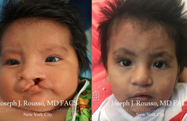 Cleft Lip & Palate before/after photo 5