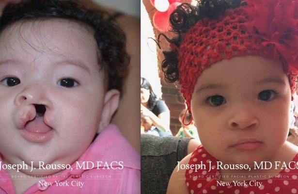 Cleft Lip & Palate before/after photo 6