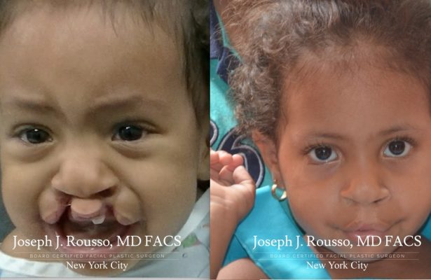 Cleft Lip & Palate before/after photo 7
