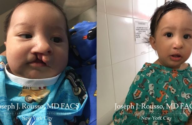 Cleft Lip & Palate before/after photo 8