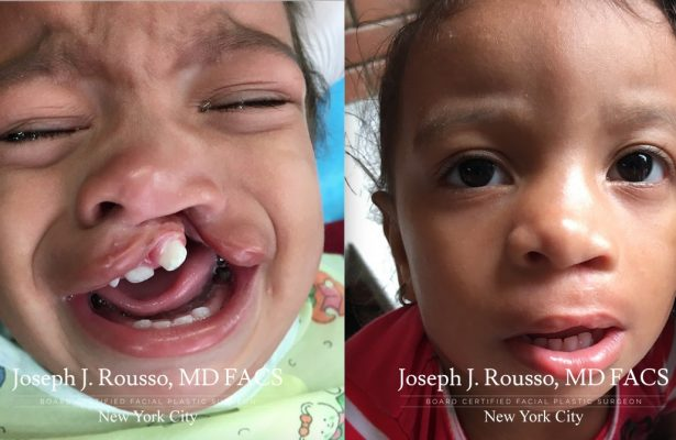 Cleft Lip & Palate before/after photo 9