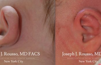 EarWell™ Infant Ear Correction Before/after 3