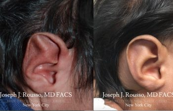 EarWell™ Infant Ear Correction Before/after 4