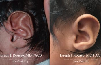 EarWell™ Infant Ear Correction Before/after 5
