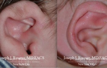 EarWell™ Infant Ear Correction Before/after 8