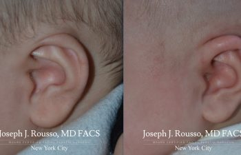 EarWell™ Infant Ear Correction Before/after 1