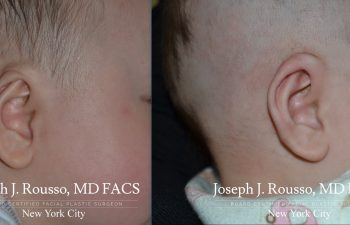 EarWell™ Infant Ear Correction Before/after 2