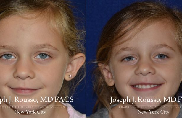 Otoplasty/Ear Pinning before/after photo 1