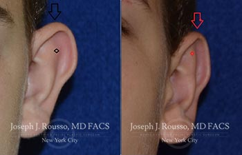 Before and After Images of Ear Deformities,