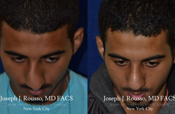 Male Rhinoplasty before/after photo 1