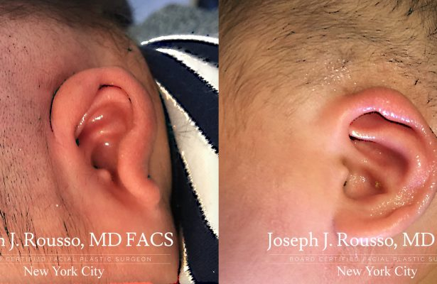 Ears & Microtia before/after photo 8