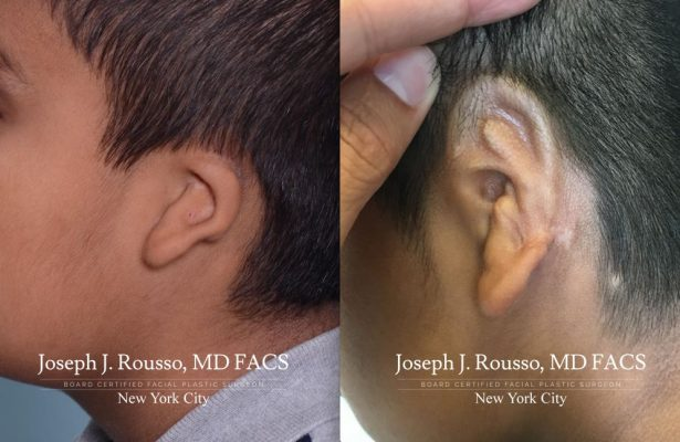Ears & Microtia before/after photo 11