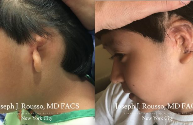 Ears & Microtia before/after photo 12