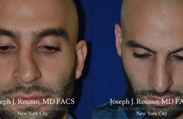 Male Rhinoplasty before/after photo 2