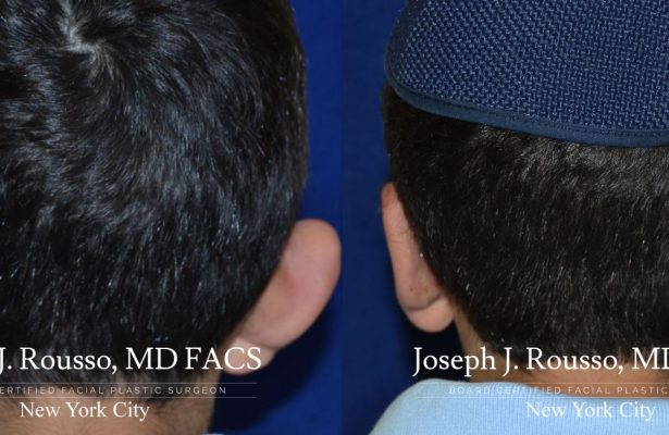 Otoplasty/Ear Pinning before/after photo 9