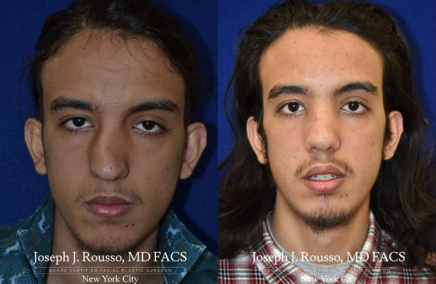 Male Rhinoplasty before/after photo 6