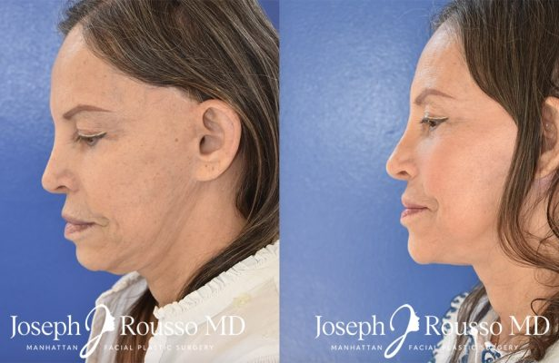 Facelift before/after photo 1