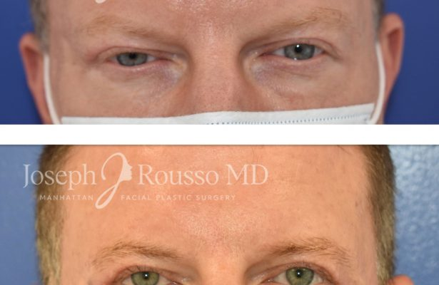 Blepharoplasty before/after photo 1
